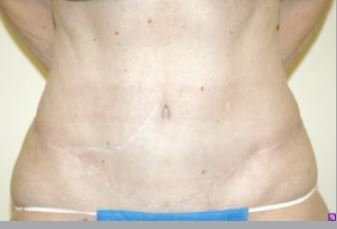 Body Lift Melbourne Before & After | Patient 01 Photo 1