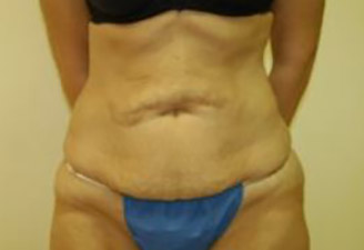Body Lift Melbourne Before & After | Patient 02 Photo 0 Thumb