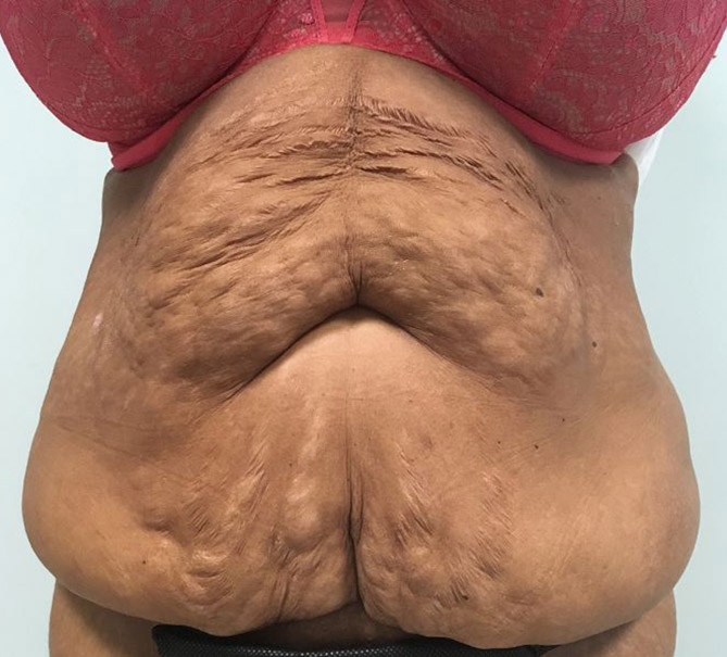 Body Lift Melbourne Before & After | Patient 03 Photo 0