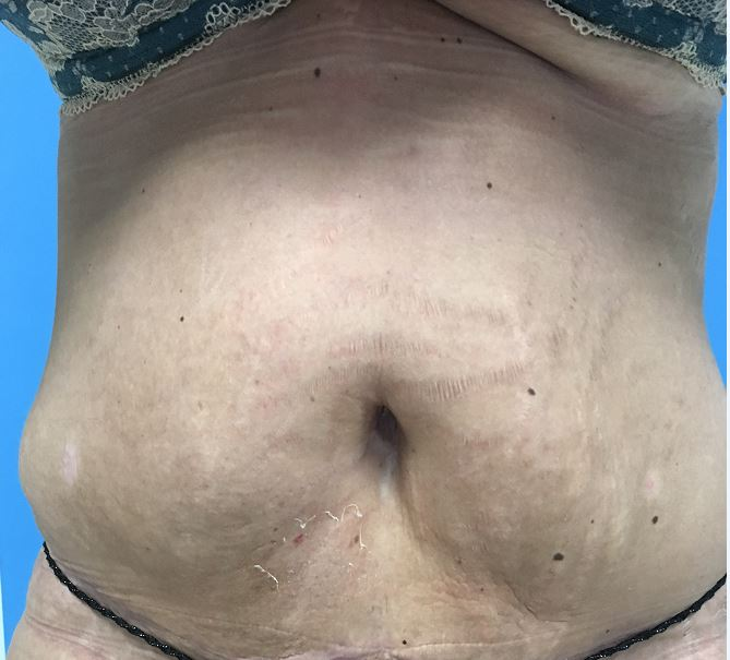 Body Lift Melbourne Before & After | Patient 03 Photo 1