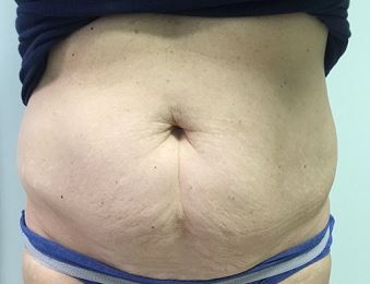 Tummy Tuck Melbourne Before & After | Patient 01 Photo 0 Thumb