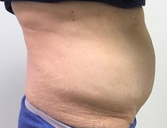 Tummy Tuck Melbourne Before & After | Patient 01 Photo 2 Thumb