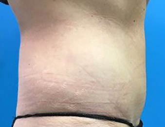 Tummy Tuck Melbourne Before & After | Patient 01 Photo 3 Thumb