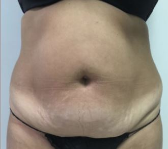 Tummy Tuck Melbourne Before & After | Patient 02 Photo 0