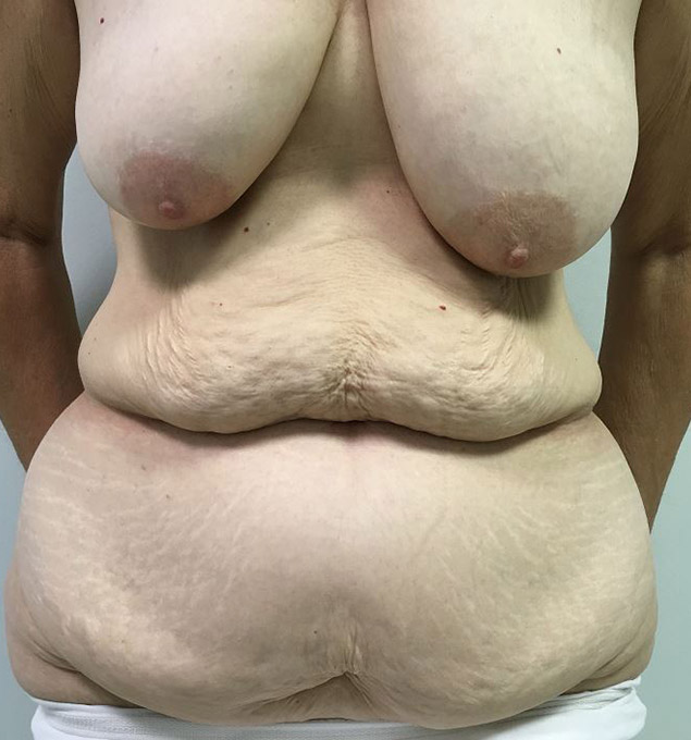 Tummy Tuck Melbourne Before & After | Patient 03 Photo 0