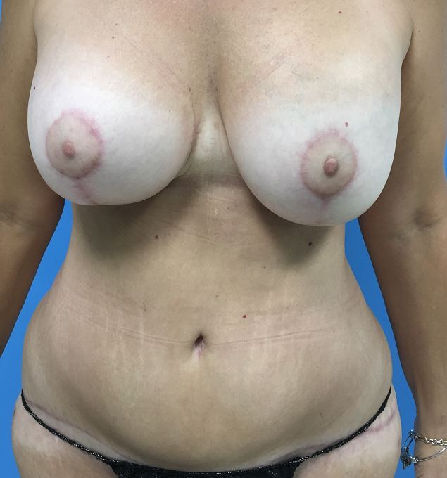 Tummy Tuck Melbourne Before & After | Patient 03 Photo 1