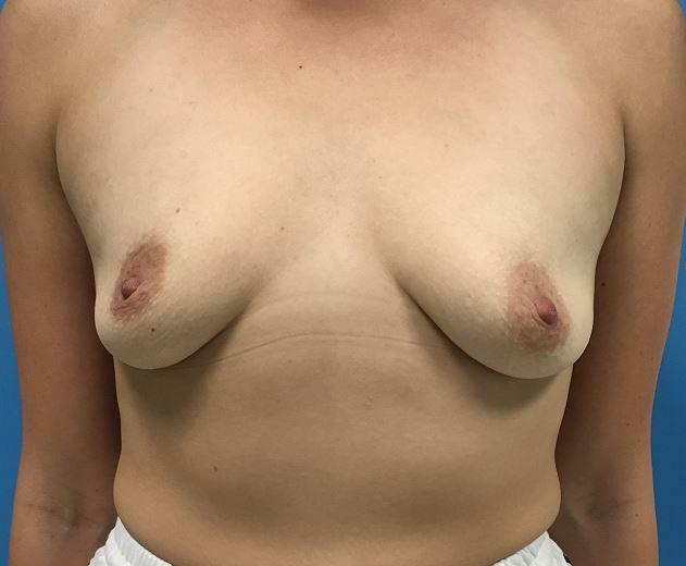 Breast Augmentation Melbourne Before & After | Patient 01 Photo 0 Thumb