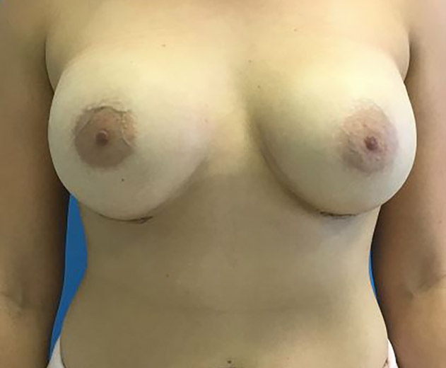 Breast Augmentation Melbourne Before & After | Patient 01 Photo 1 Thumb