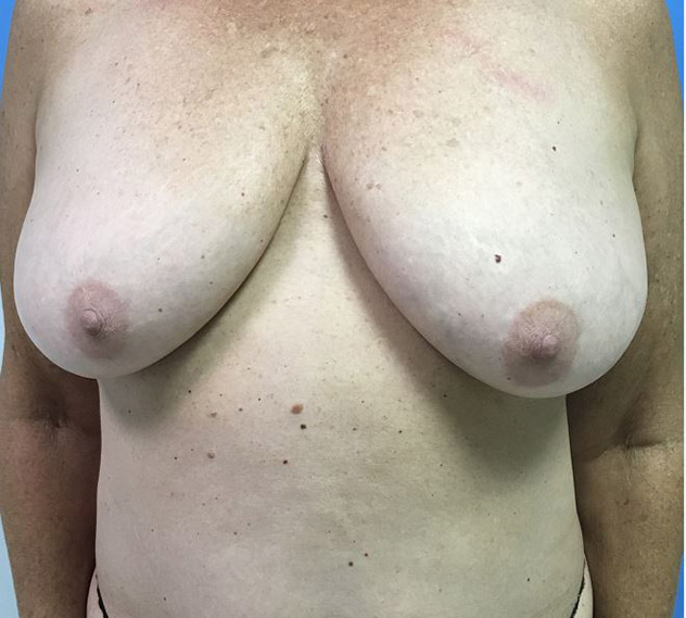 Breast Augmentation Melbourne Before & After | Patient 03 Photo 0 Thumb