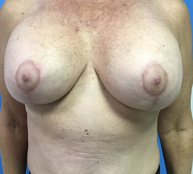 Breast Augmentation Melbourne Before & After | Patient 03 Photo 1 Thumb