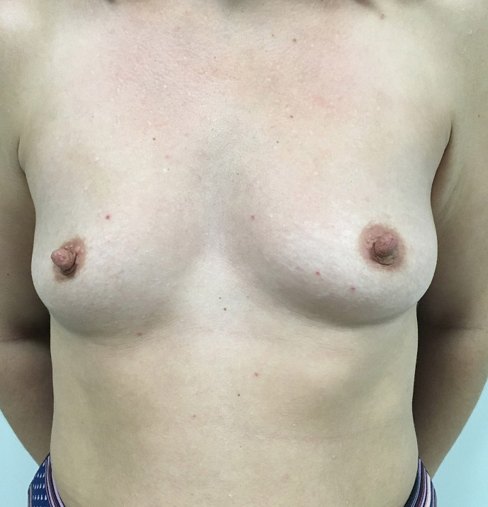 Breast Augmentation Melbourne Before & After | Patient 04 Photo 0
