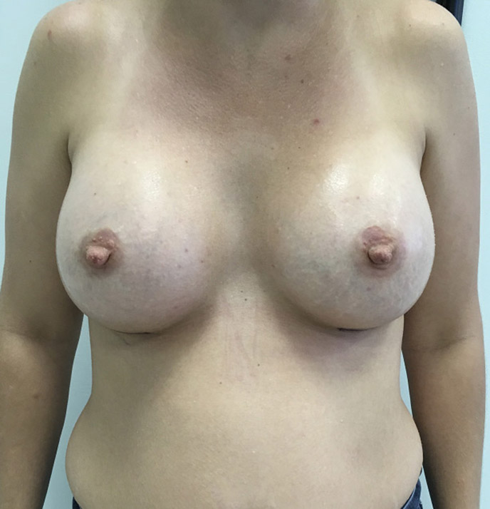 Breast Augmentation Melbourne Before & After | Patient 04 Photo 1
