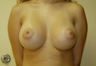 Breast Augmentation Melbourne Before & After | Patient 05 Photo 1