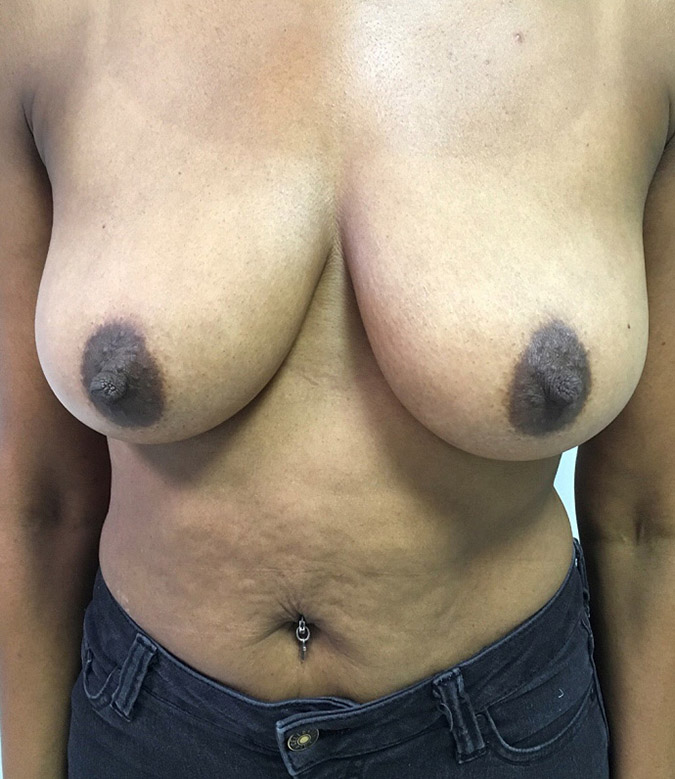 Breast Augmentation Melbourne Before & After | Patient 06 Photo 0 Thumb