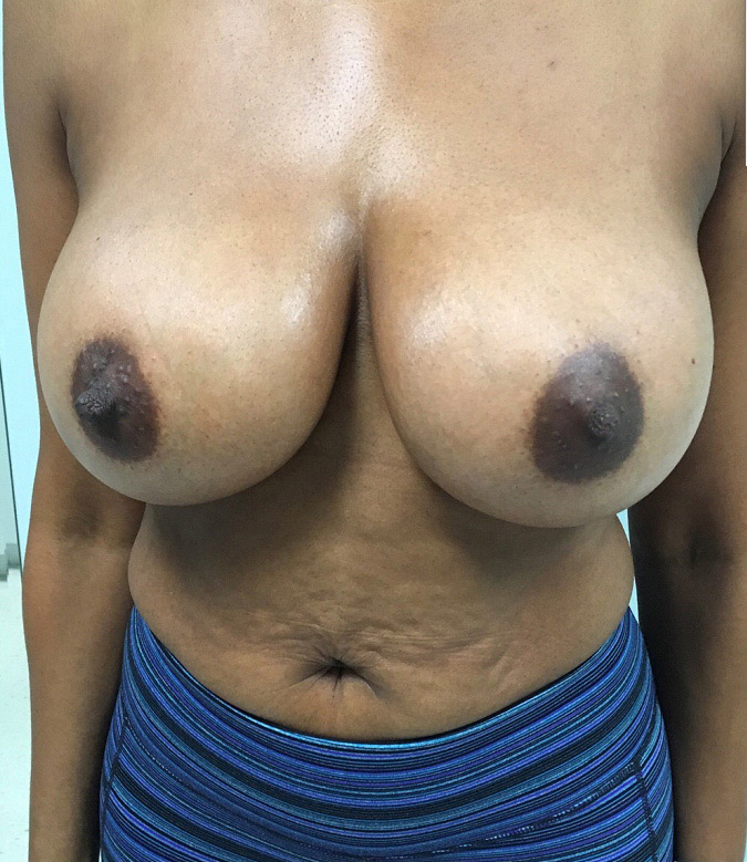 Breast Augmentation Melbourne Before & After | Patient 06 Photo 1 Thumb