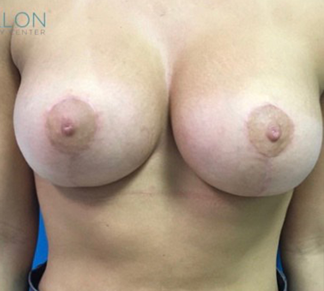 Breast Augmentation Melbourne Before & After | Patient 07 Photo 1 Thumb