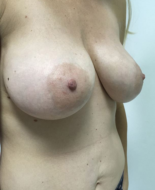Breast Implant Removal Melbourne Before & After | Patient 01 Photo 0 Thumb