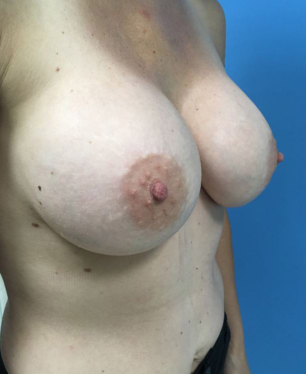 Breast Implant Removal Melbourne Before & After | Patient 01 Photo 1 Thumb