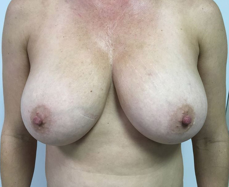 Breast Reduction Melbourne Before & After | Patient 01 Photo 0