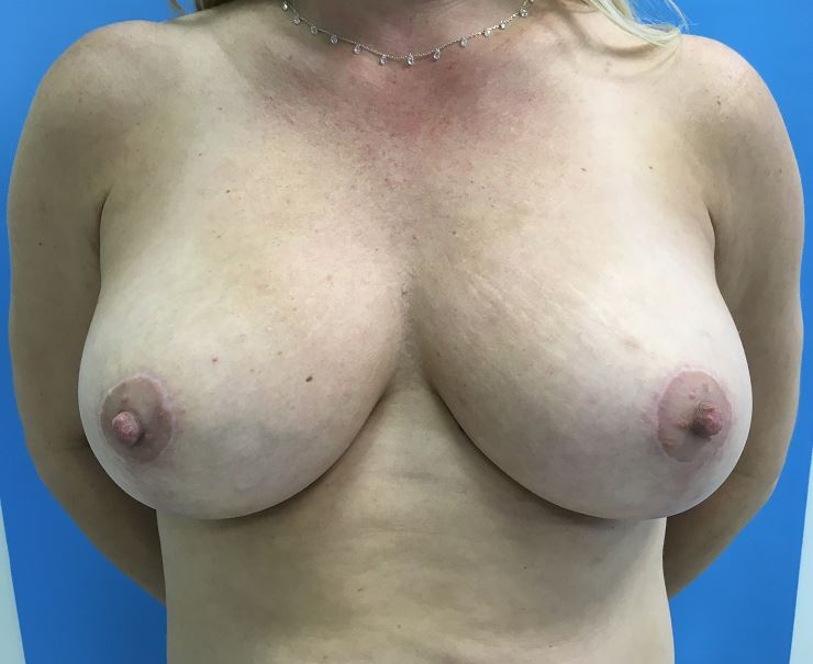 Breast Reduction Melbourne Before & After | Patient 01 Photo 1