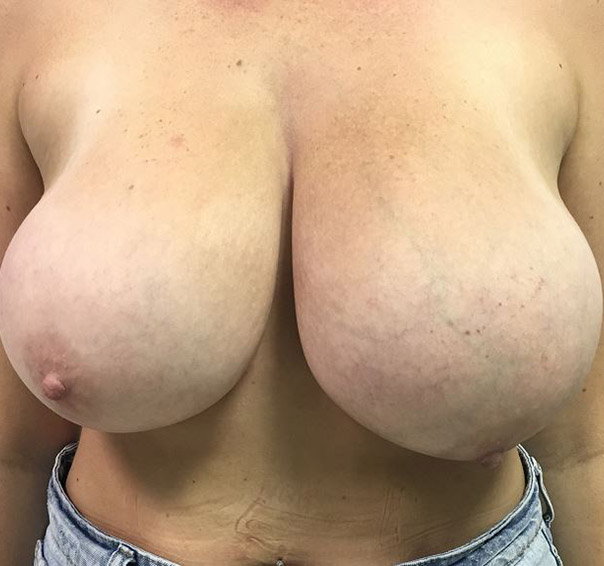 Breast Reduction Melbourne Before & After | Patient 02 Photo 0 Thumb