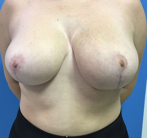 Breast Reduction Melbourne Before & After | Patient 02 Photo 1 Thumb