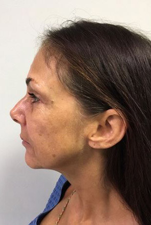 Facelift Melbourne Before & After | Patient 01 Photo 0 Thumb