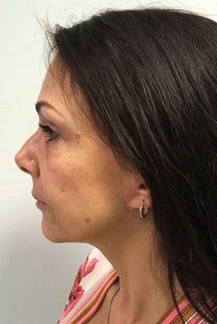 Facelift Melbourne Before & After | Patient 01 Photo 1 Thumb