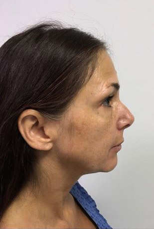 Facelift Melbourne Before & After | Patient 01 Photo 2 Thumb