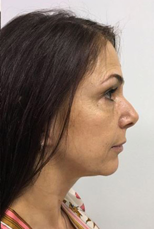 Facelift Melbourne Before & After | Patient 01 Photo 3 Thumb