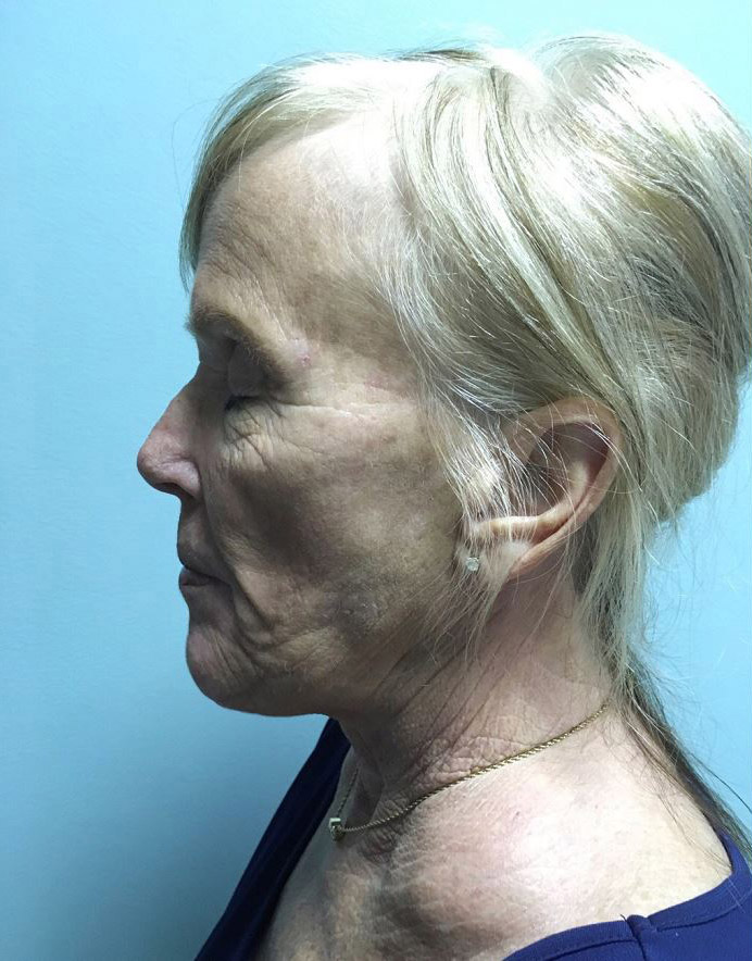 Facelift Melbourne Before & After | Patient 04 Photo 0 Thumb
