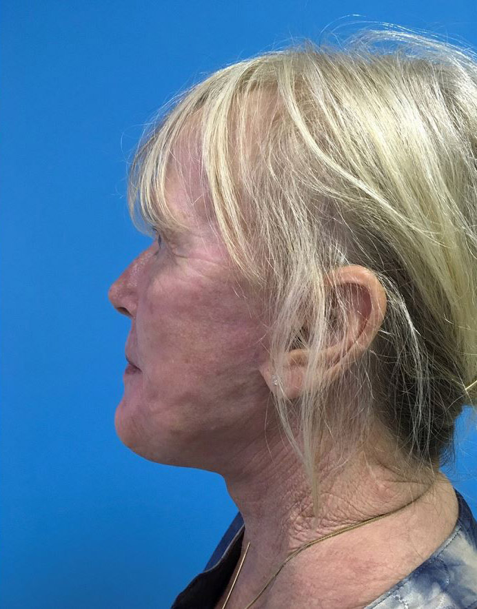 Facelift Melbourne Before & After | Patient 04 Photo 1 Thumb