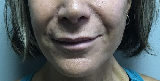 Lip Augmentation Melbourne Before & After | Patient 01 Photo 0