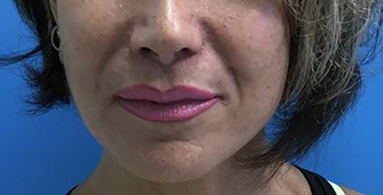 Lip Augmentation Melbourne Before & After | Patient 01 Photo 1