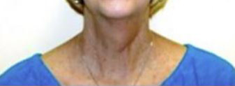 Neck Lift Melbourne Before & After | Patient 01 Photo 0 Thumb
