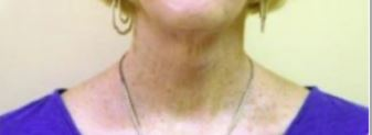 Neck Lift Melbourne Before & After | Patient 01 Photo 1 Thumb