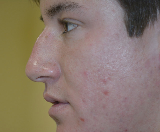 Rhinoplasty Melbourne Before & After | Patient 01 Photo 0