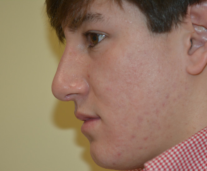 Rhinoplasty Melbourne Before & After | Patient 01 Photo 1