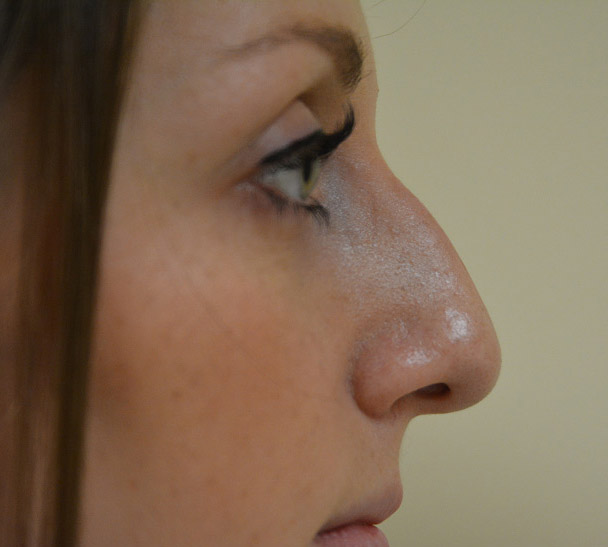 Rhinoplasty Melbourne Before & After | Patient 02 Photo 0 Thumb