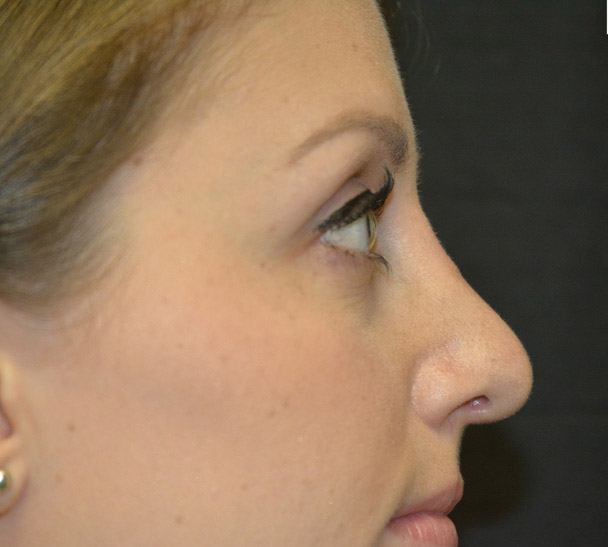 Rhinoplasty Melbourne Before & After | Patient 02 Photo 1 Thumb