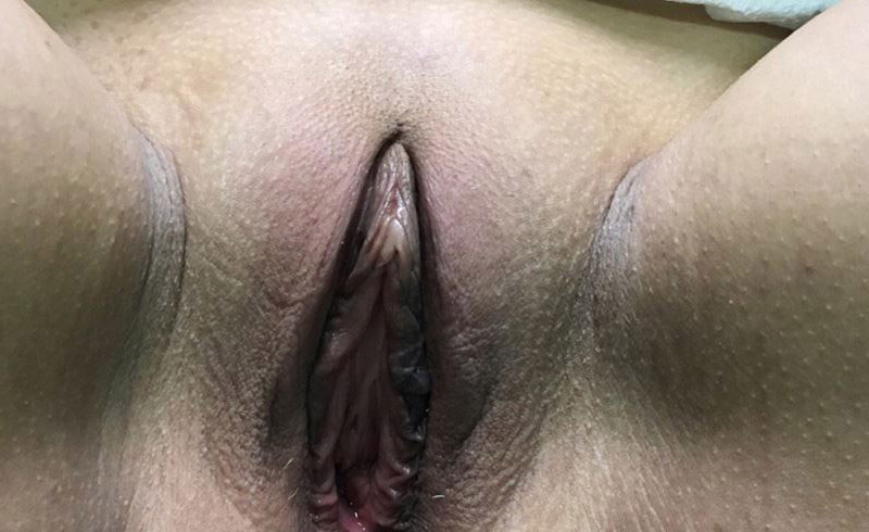 Votiva Vaginal Rejuvenation Melbourne Before & After | Patient 01 Photo 0 Thumb
